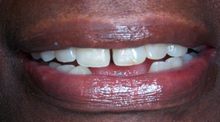Porcelain Crowns with Lower Partial